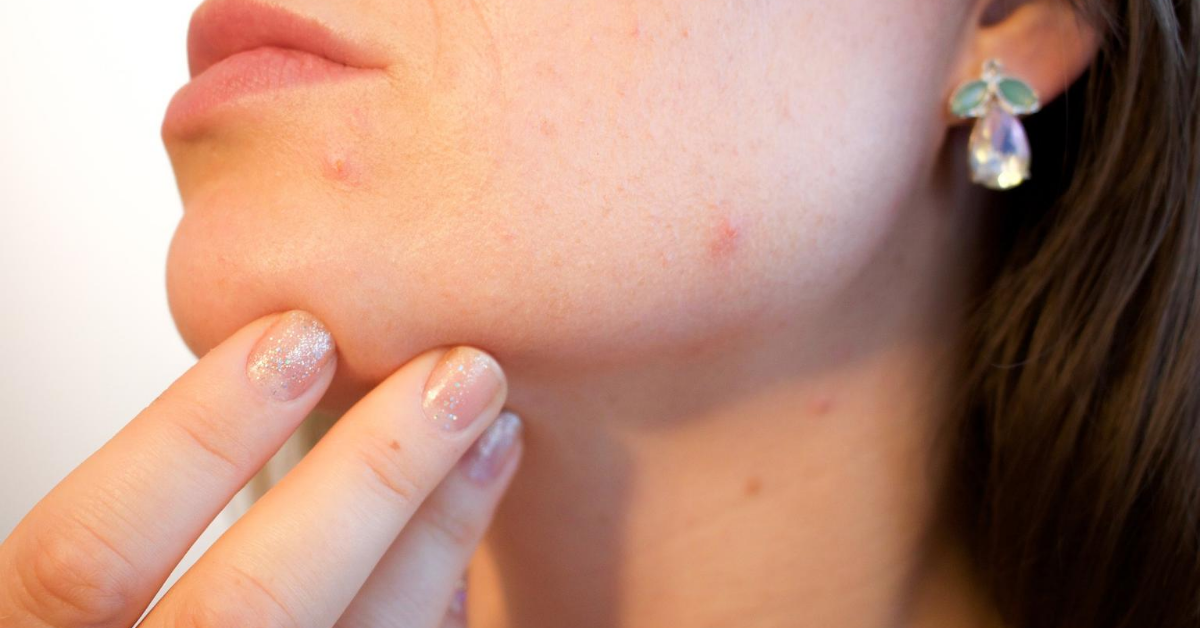 Woman Fighting Mask Acne